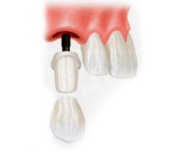 前歯(奥歯)を1〜2本失った場合