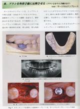 III.プランを外科手術に反映させる(プランどおりに手術を行う)