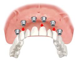 4:入れ歯を支えるインプラント
